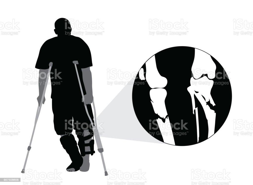 Broken Leg Sports Accident vector art illustration