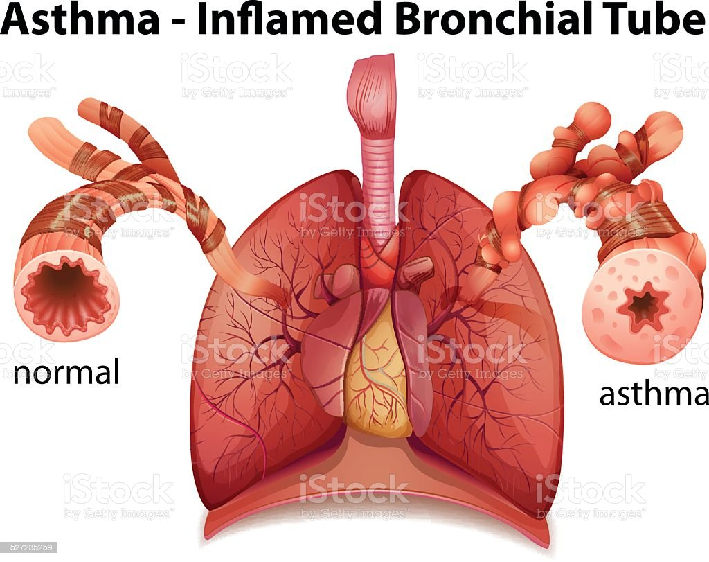Bronchial asthma vector art illustration