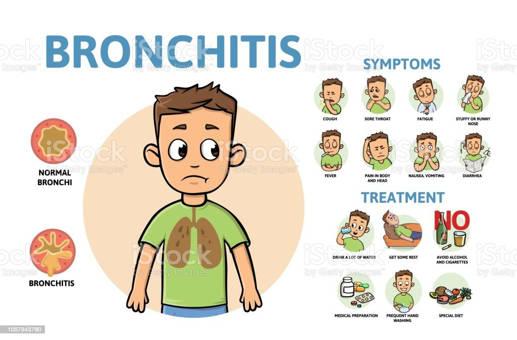 Bronchitis disease symptoms and treatment. Infographic poster with text and character. Flat vector illustration, horizontal. vector art illustration