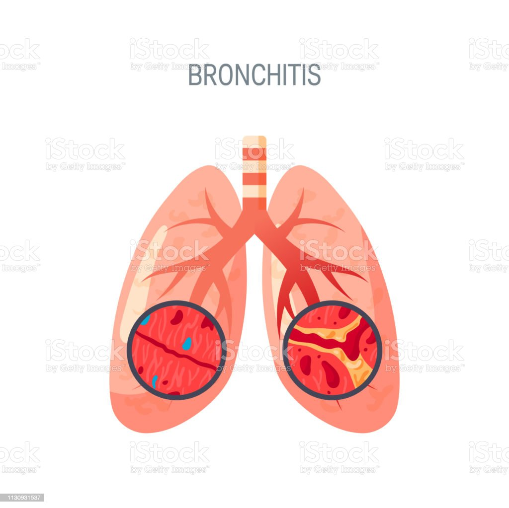 Bronchitis disease vector icon in flat style vector art illustration