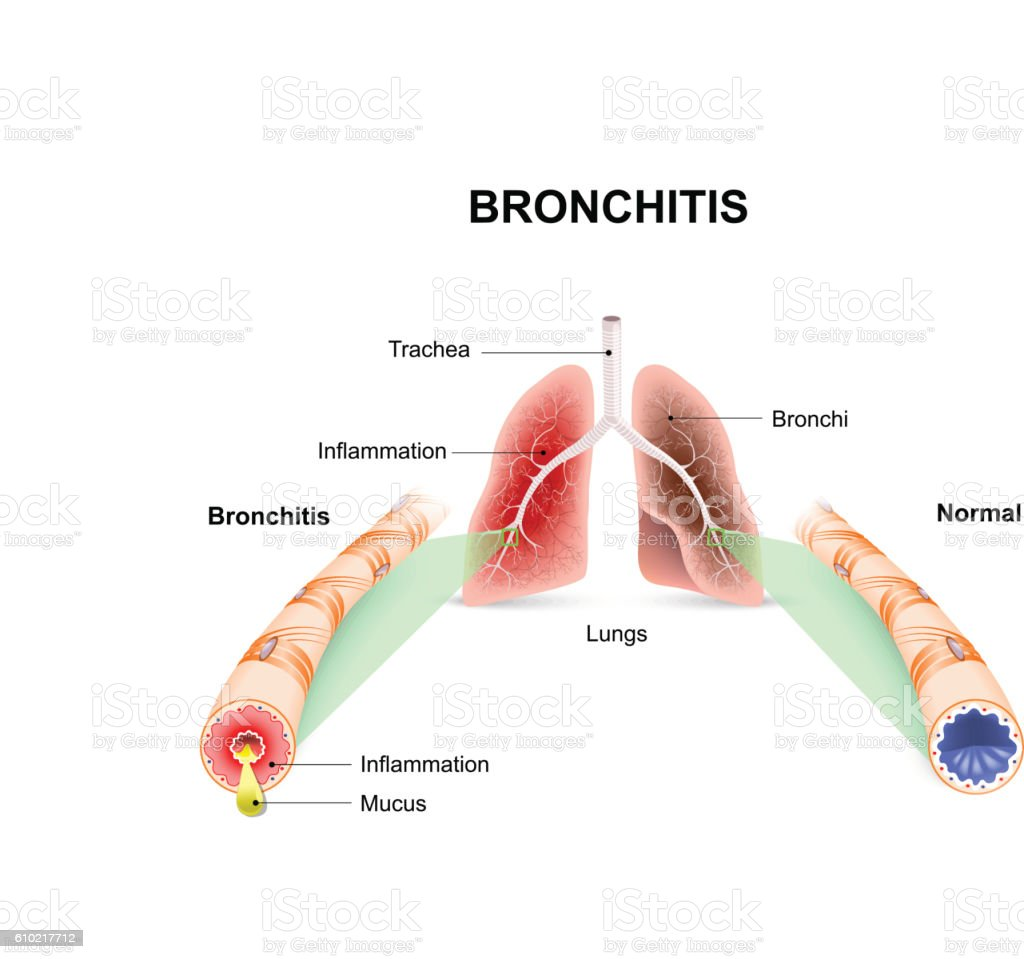 Bronchitis vector art illustration