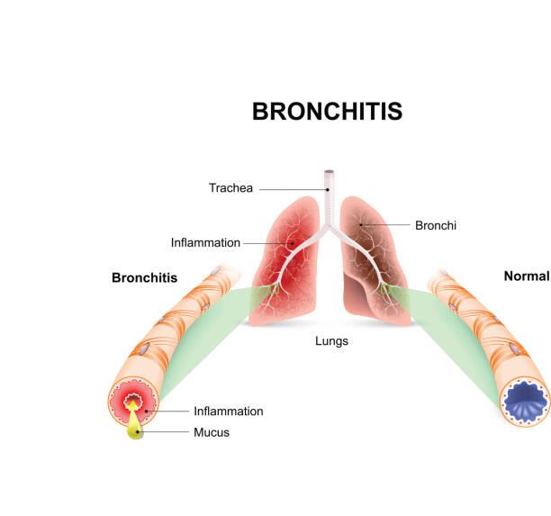 Bronchitis Bronchitis. Lungs and bronchial tubes. normal bronchial tube and a bronchial tube with bronchitis. chronic illness stock illustrations