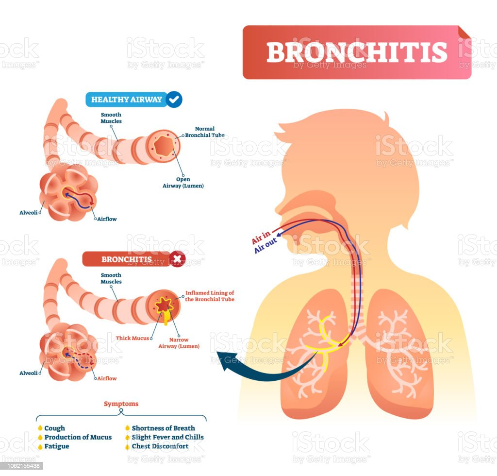 Bronchitis vector illustration. Lung disease diagnosis with symptoms. vector art illustration