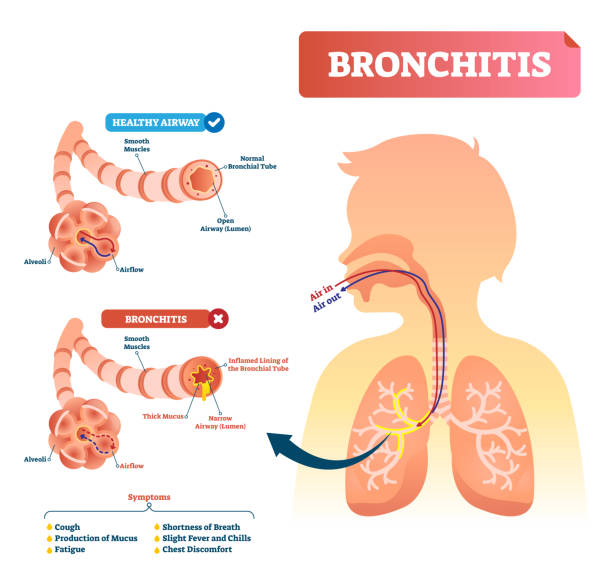 Bronchitis vector illustration. Lung disease diagnosis with symptoms. Bronchitis vector illustration. Lung disease diagnosis. Labeled medical diagram with healthy airway and illness. Pulmonary problem and symptoms like cough, fatigue, breath shortness, chills and fever. alveolar duct stock illustrations