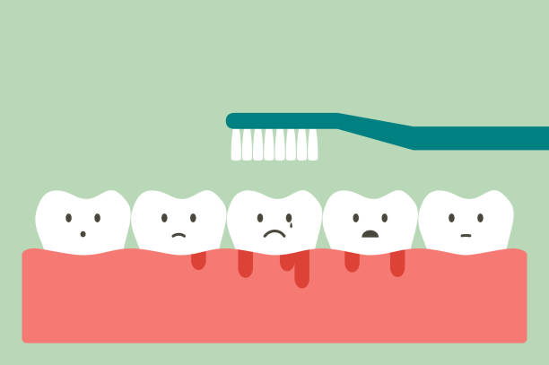 ilustrações de stock, clip art, desenhos animados e ícones de brushing teeth with bleeding on gum and tooth, gingivitis or scurvy concept - boca suja
