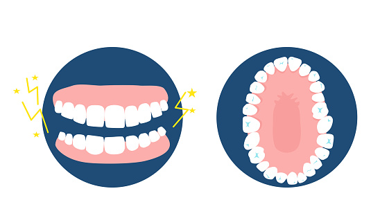Bruxism disease concept.Human jaw top and front view.Dental and orthodontic treatment.Oral hygiene and care.Clinic advertisement poster.Dentures.Vector.