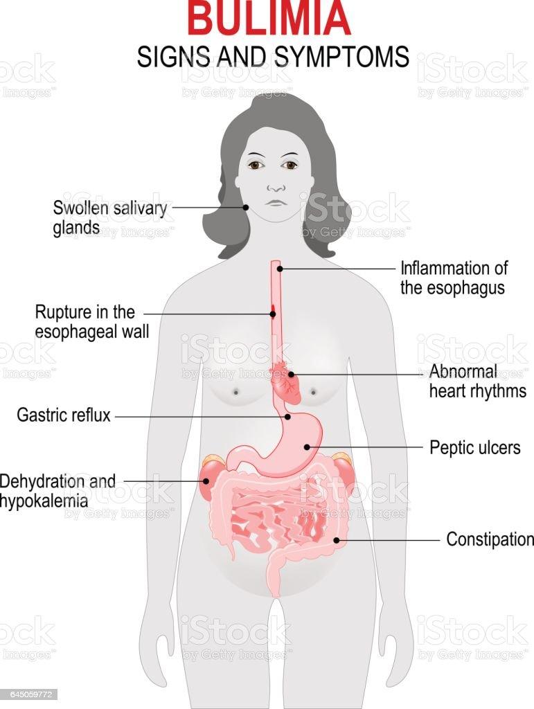 Bulimia. Signs and symptoms vector art illustration
