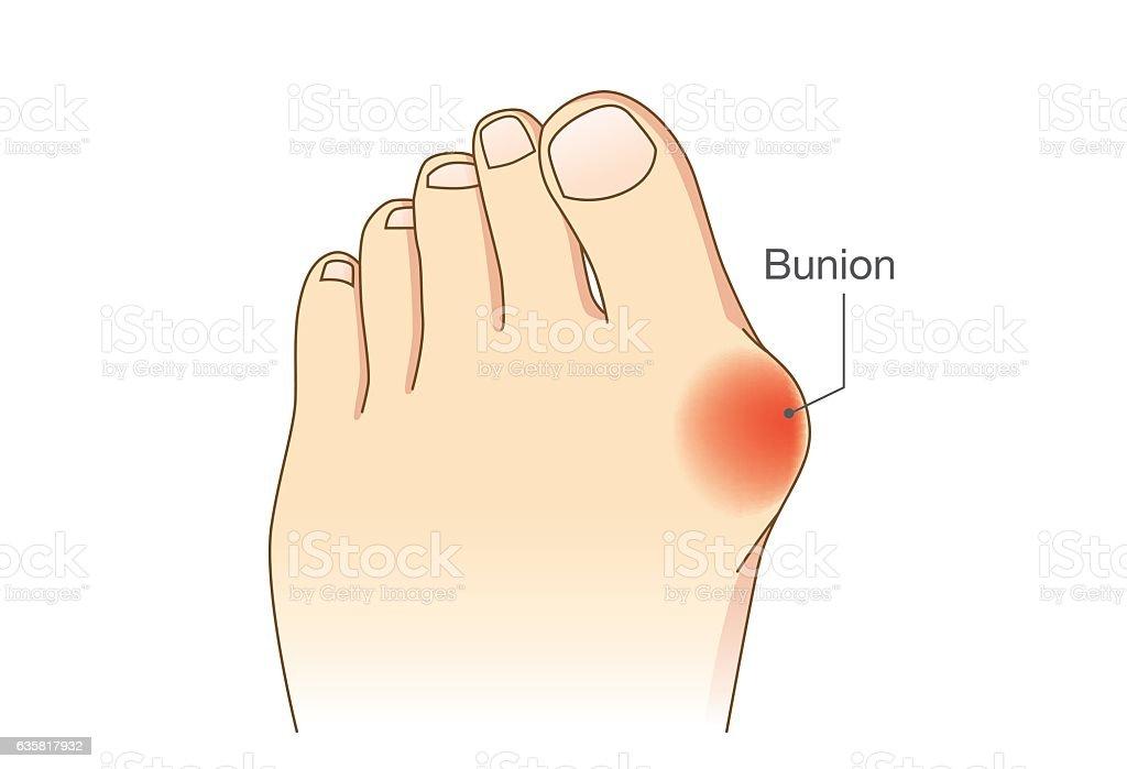 Bunion at sides of foot vector art illustration