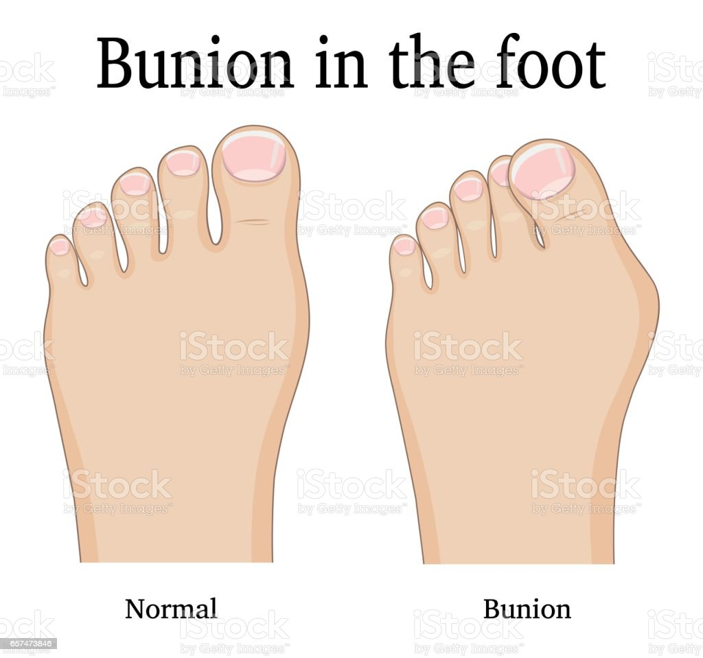 Bunion In The Foot Stock Vector Art & More Images of Anatomy ...