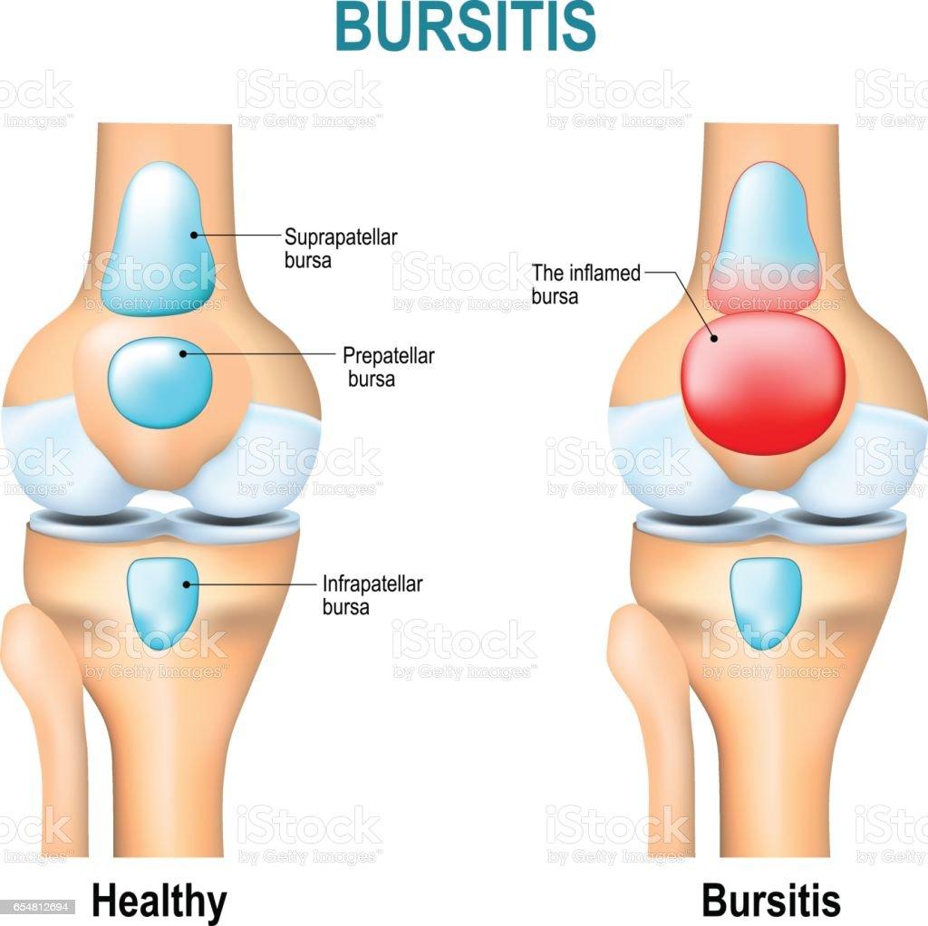 Bursitis Healthy Knee And Knee With Bursitis Stock Vector Art & More ...