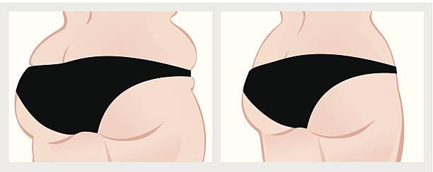bildbanksillustrationer, clip art samt tecknat material och ikoner med buttocks before and after weight loss. - bum