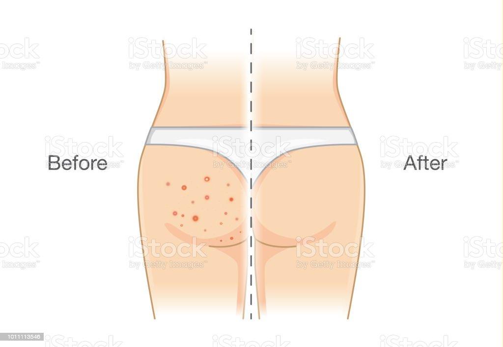 erupción estándar en las nalgas