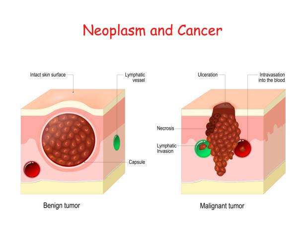 benign cancer circle