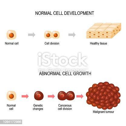 istock Cancer cells. illustration showing cancer disease development. 1094172986