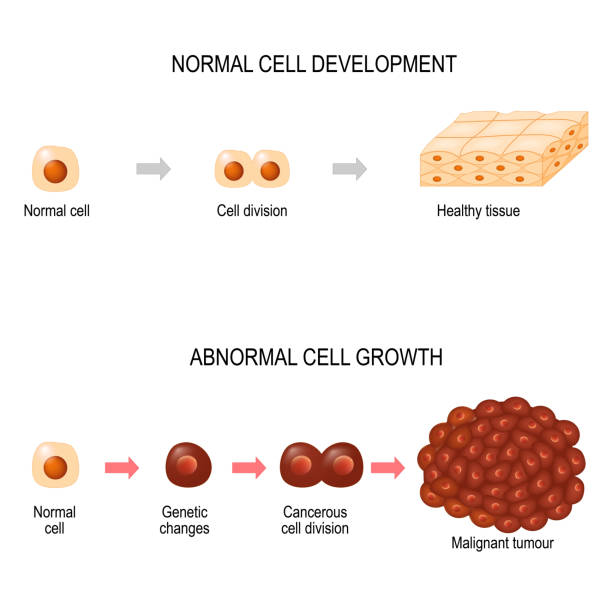 Cancer cells. illustration showing cancer disease development. Cancer cells. illustration showing cancer disease development. Healthy tissue and Malignant tumour.  Vector diagram for your design, educational, biological, science and medical use metastasis stock illustrations