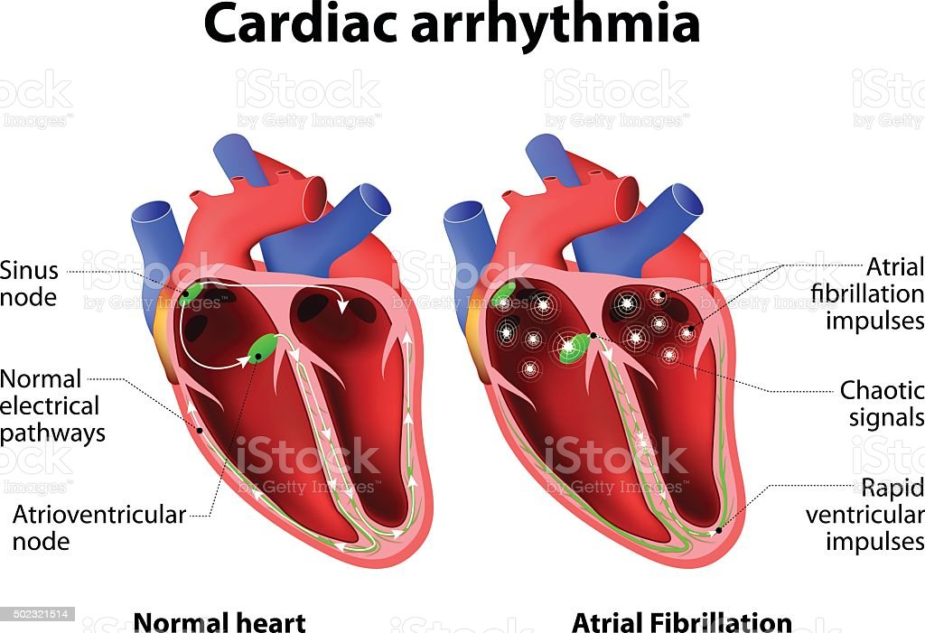 Cardiac arrhythmia vector art illustration