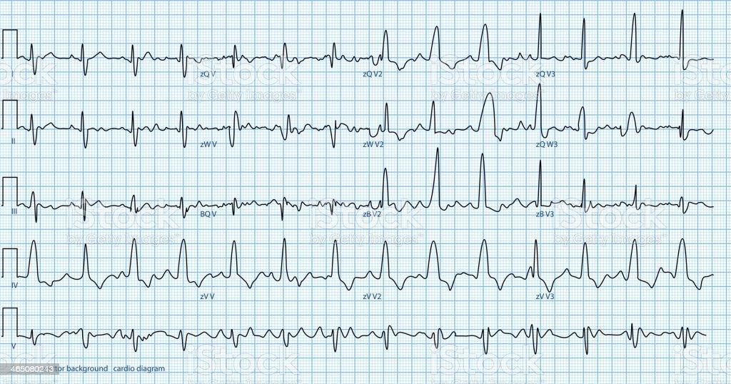 cardio diagram vector art illustration