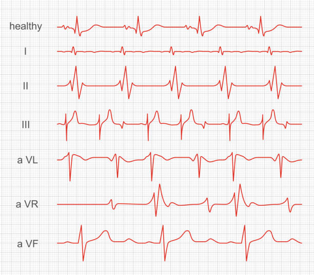 Cardiogram, heart red rhythm on monitor screen Cardiogram, heart red rhythm on monitor screen. Record of muscle activity within made by a cardiograph. Vector illustration pulse trace stock illustrations