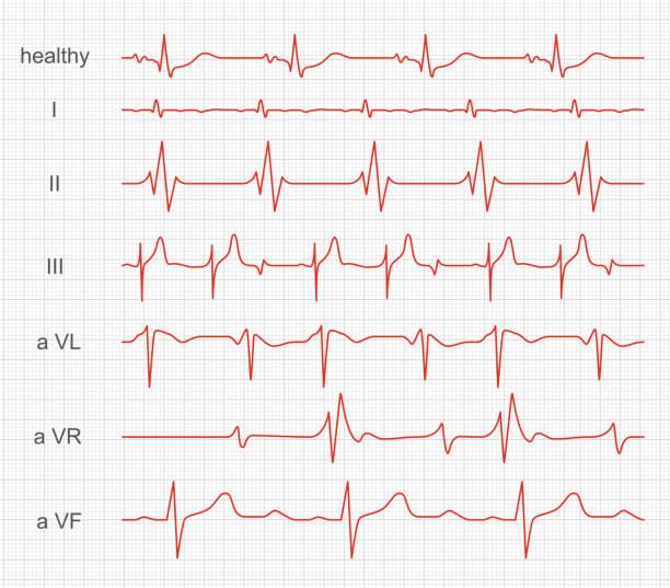 bildbanksillustrationer, clip art samt tecknat material och ikoner med kardiogram, hjärt röd rytm på skärmen - medicinsk journal