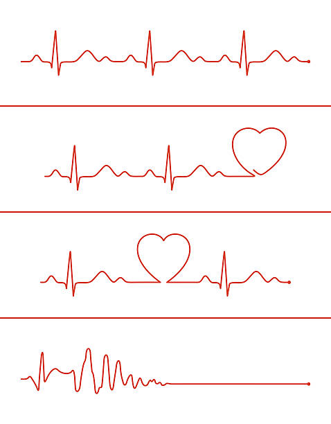 Cardiogram lines set Set of various cardiogram design elements. Cardiogram lines of healthy heart and heart stop pulse trace stock illustrations