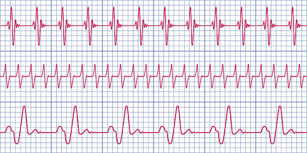 Cardiogram Seamless pattern of the ekg cardiograms chart taking pulse stock illustrations