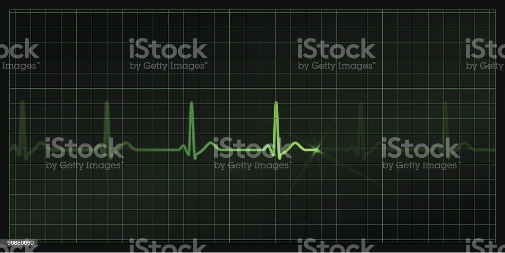 Cardiogram royalty-free cardiogram stock vector art & more images of backgrounds