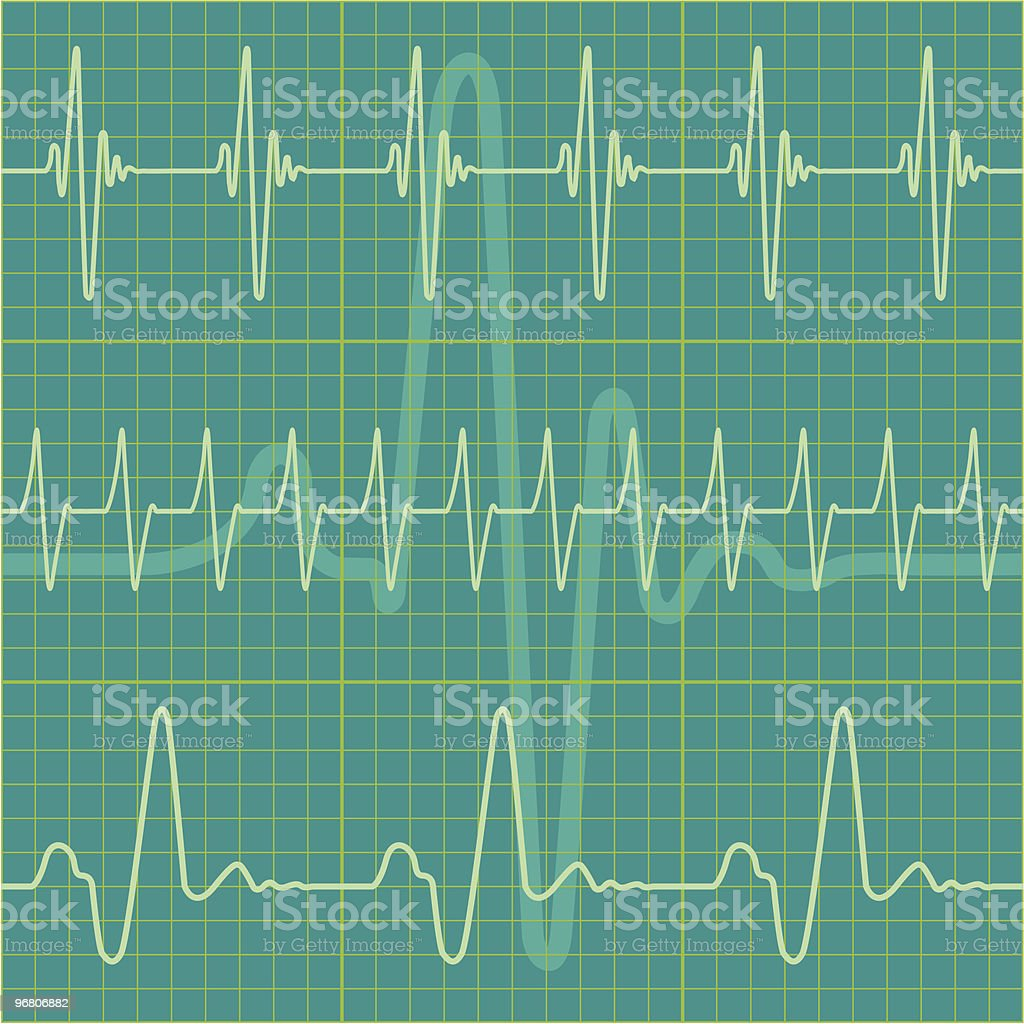 A cardiogram with multiple heartbeats background royalty-free stock vector art