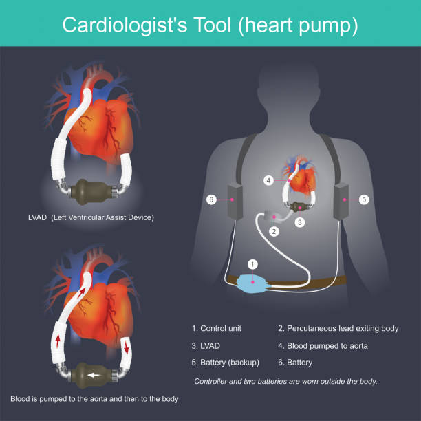 A Cardiologist's Tool (heart pump) vector art illustration