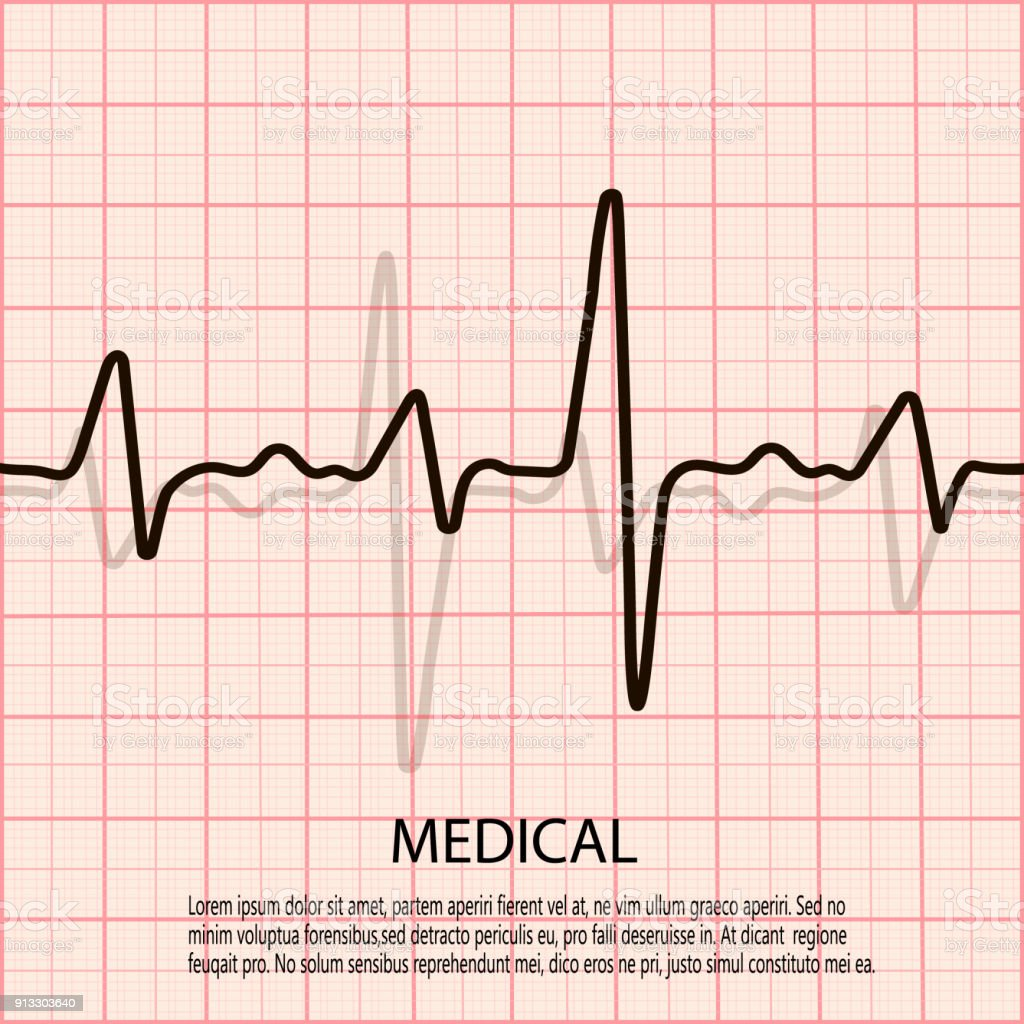 Cardiology concept with pulse rate diagram medical background with cardiology concept with pulse rate diagram medical background with heart cardiogram royalty free ccuart Image collections
