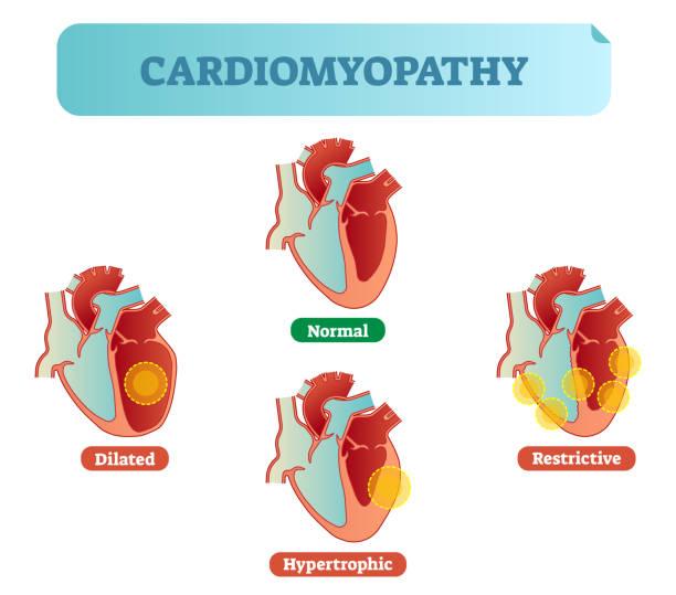Best Heart Disease Illustrations, Royalty-Free Vector ...