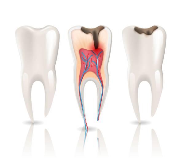 stockillustraties, clipart, cartoons en iconen met cariës en gezondheid tanden 3d-realistische kiespijn. - dentine