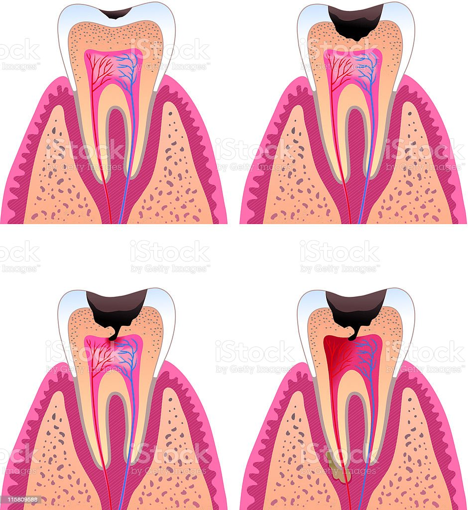 Caries stages royalty-free caries stages stock vector art & more images of anatomy