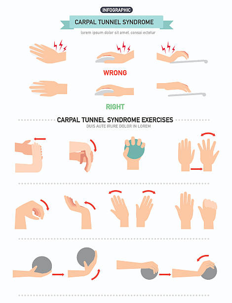 Carpal tunnel syndrome infographic vector art illustration