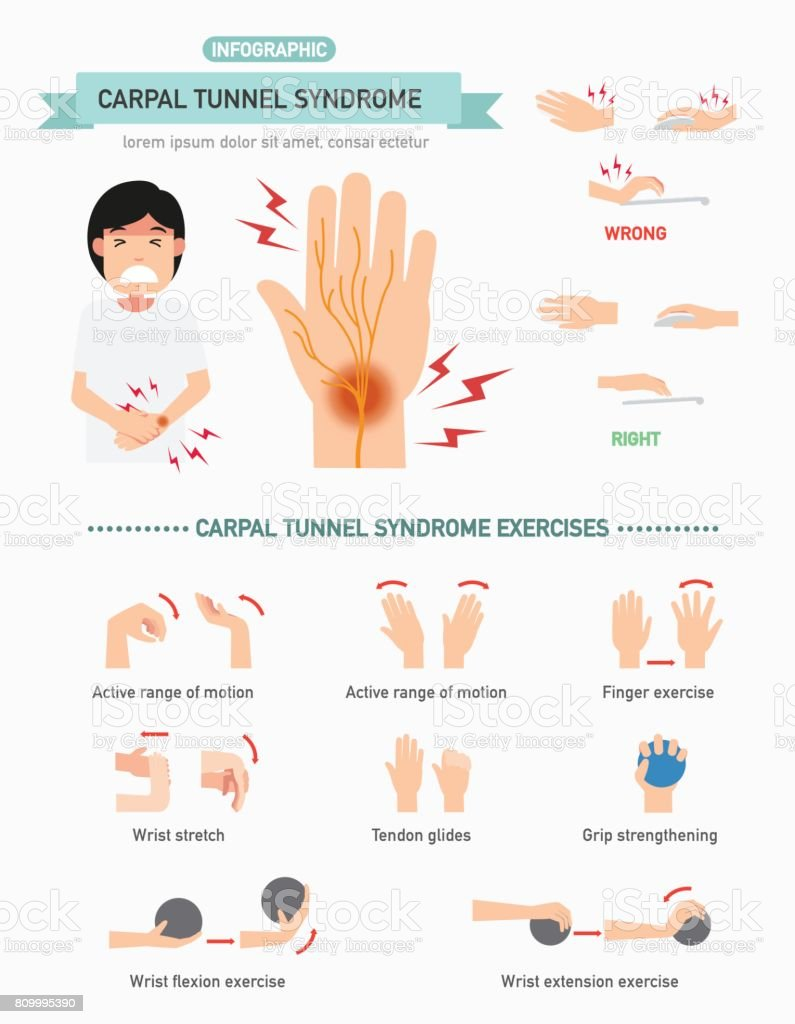 Carpal tunnel syndrome infographic,vector