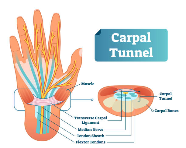 Image result for free images of carpal tunnel