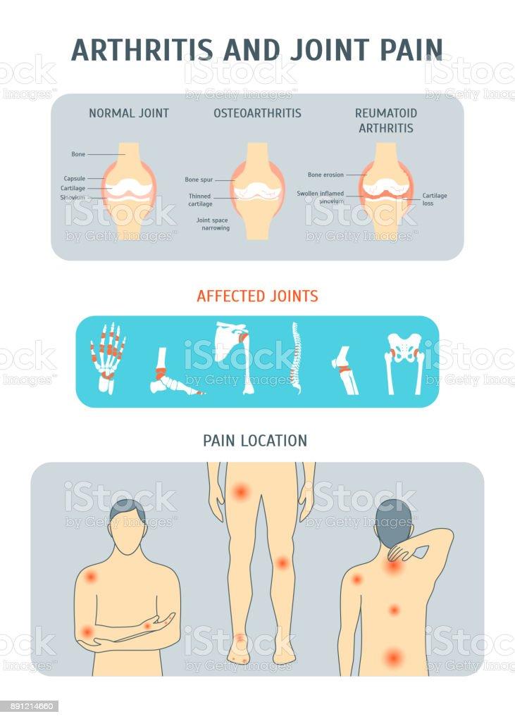 Cartoon Arthritis and Joint Pain Set. Vector vector art illustration