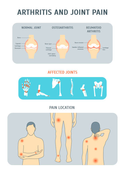 Cartoon Arthritis and Joint Pain Set. Vector vector art illustration