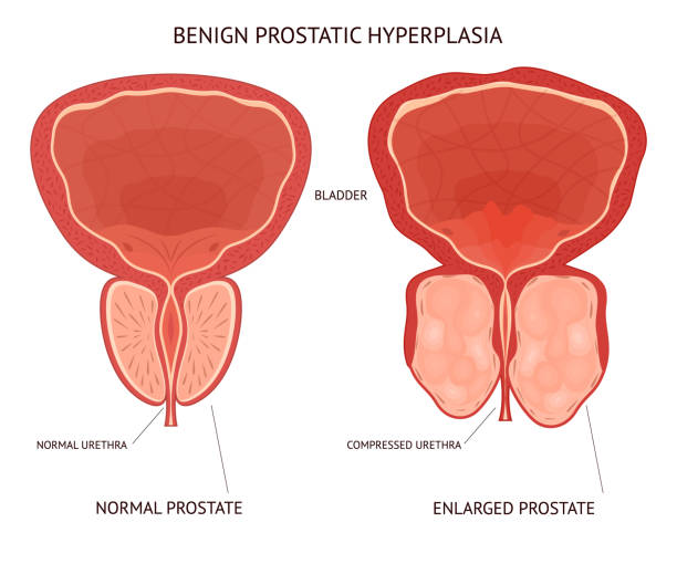 bildbanksillustrationer, clip art samt tecknat material och ikoner med tecknad benign prostatahyperplasi infographics koncept kort affisch. vektor - prostatakörtel