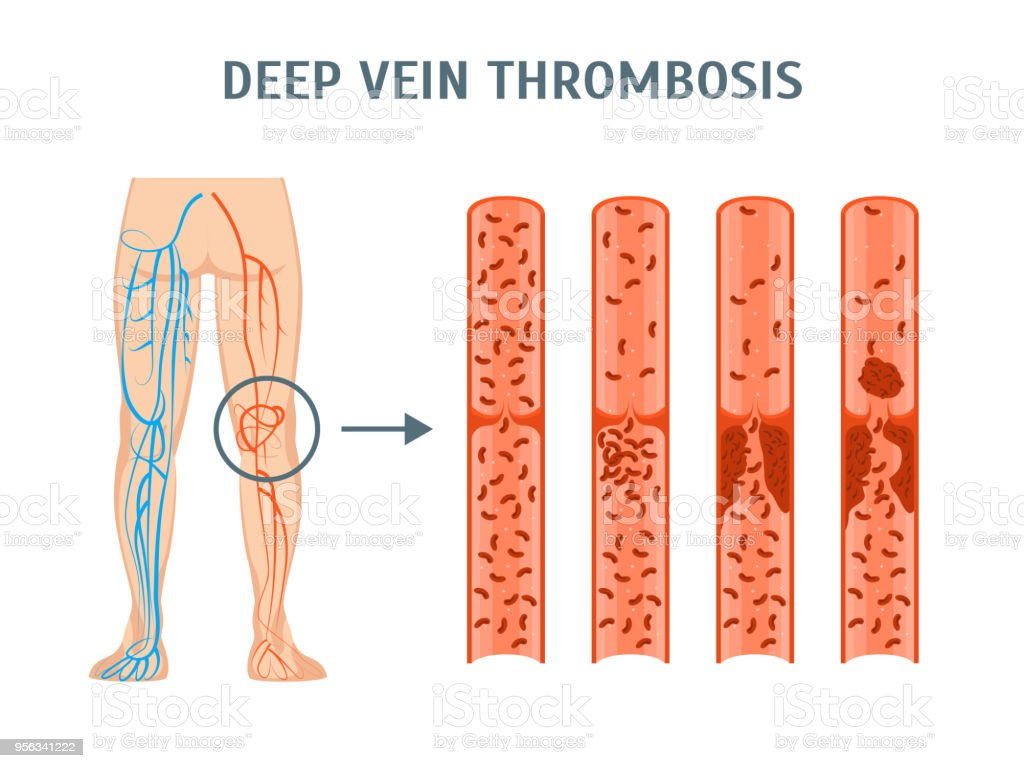 Cartoon Deep Vein Thrombosis Infographics Card Poster. Vector vector art illustration