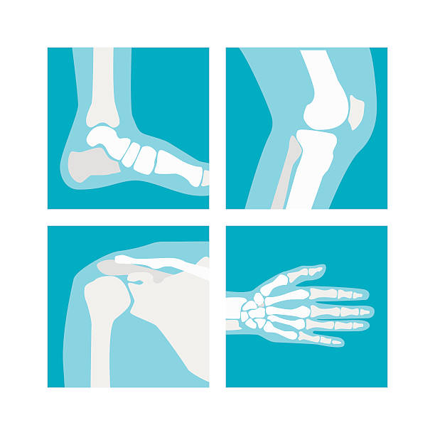 Cartoon Human Joints Set. Vector Cartoon Human Joints Set Health Care Medical Diagnostic X-ray. Flat Design Style Vector illustration radiology stock illustrations