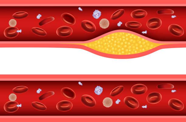 ilustrações, clipart, desenhos animados e ícones de desenhos animados ilustração de artéria bloqueado com mau colesterol anatomia - colesterol