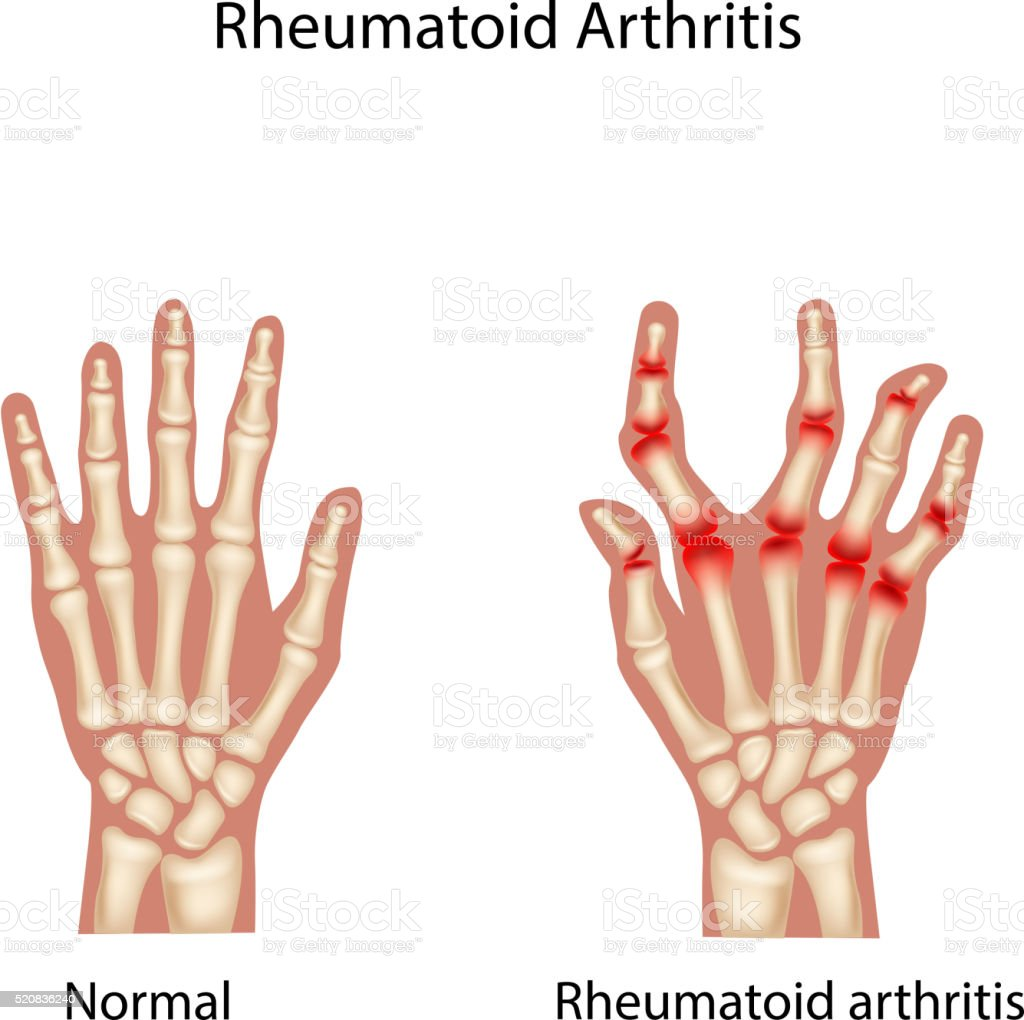 Cartoon illustration of Rheumatoid Arthi vector art illustration