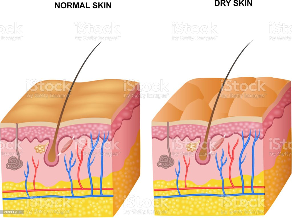 Cartoon Illustration Of The Layers Normal Skin And Dry Skin Stock