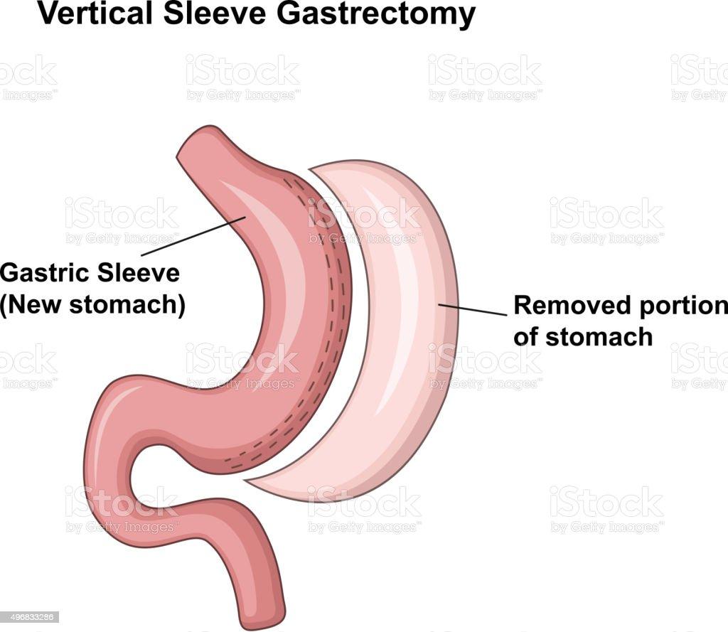 Cartoon illustration of Vertical Sleeve Gastrectomy (VSG) vector art illustration