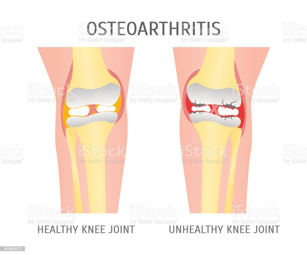 Cartoon Osteoarthritis Healthy and Unhealthy Knee. Vector vector art illustration