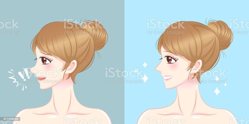 Chirurgie Du Nez Femme Dessin Anime Cliparts Vectoriels Et Plus D