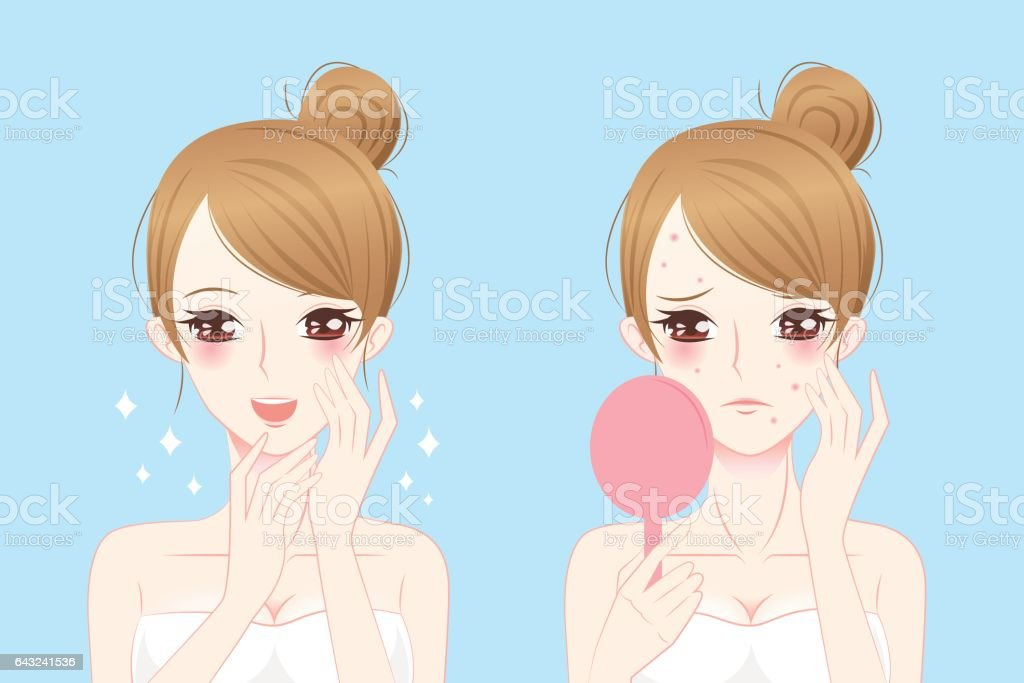 cartoon woman with acne vector art illustration