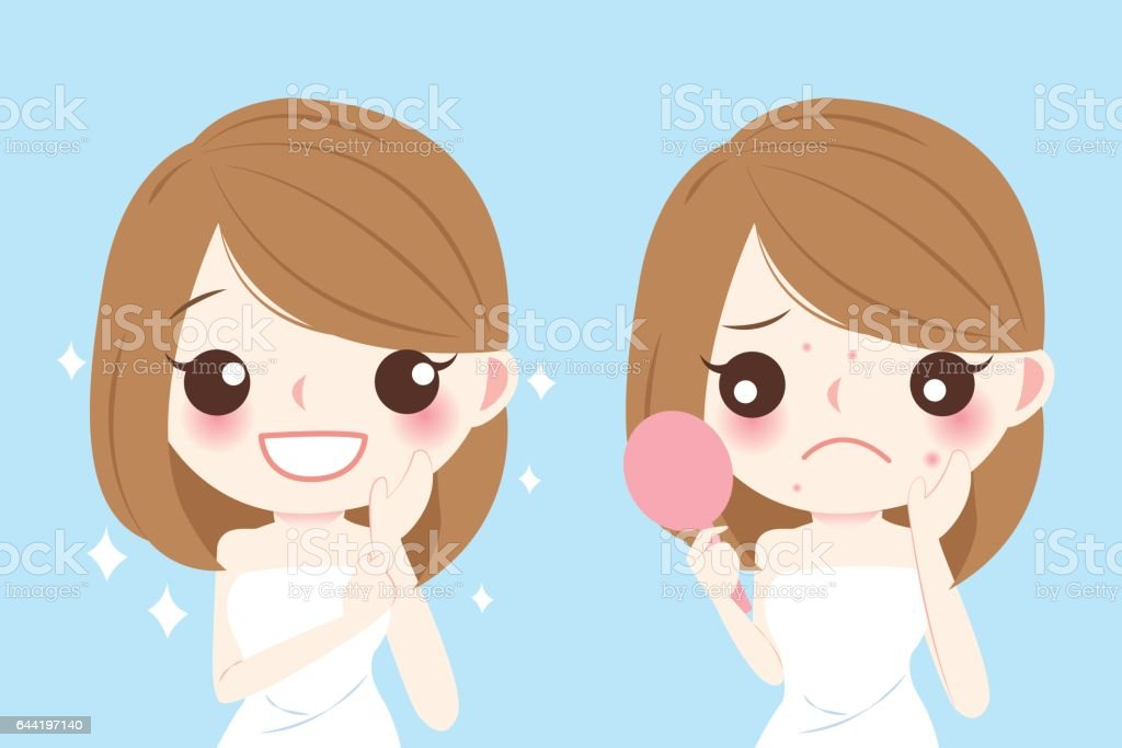 Cartoon Woman With Acne Stock Vector Art  U0026 More Images Of Acne 644197140