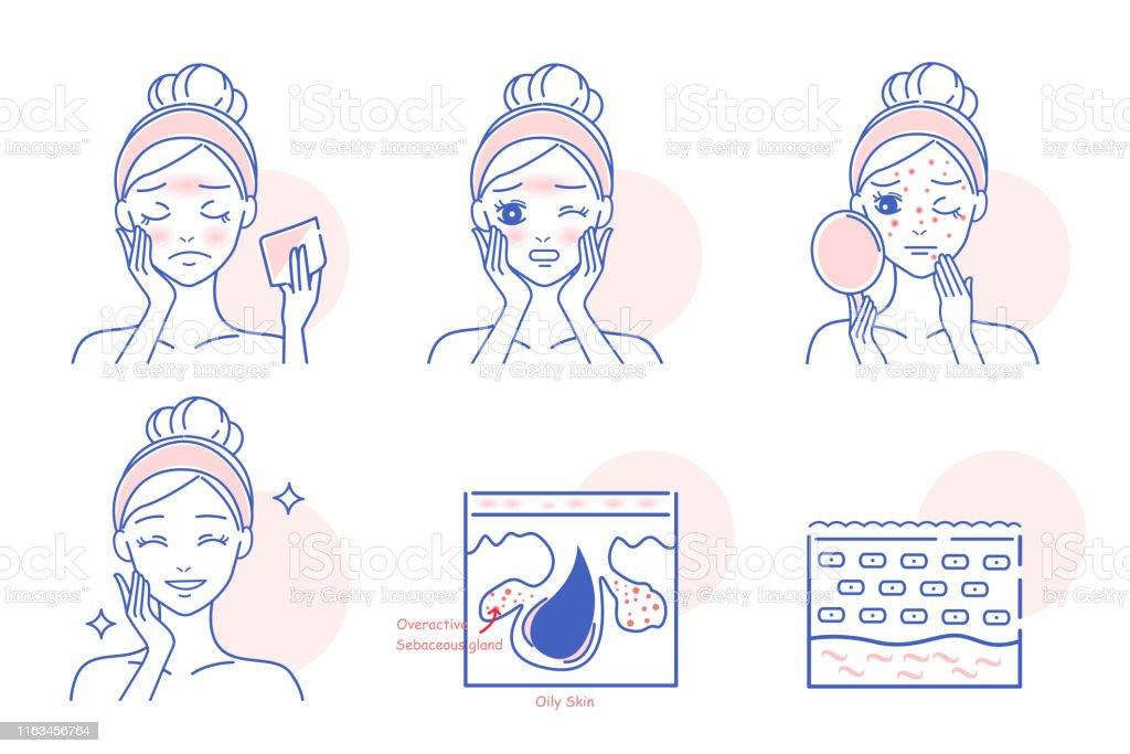 Cartoon vrouw met gezicht olie - Royalty-free Acne vectorkunst