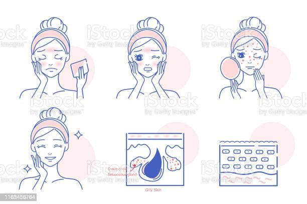 Cartoon Vrouw Met Gezicht Olie Stockvectorkunst en meer beelden van Acne